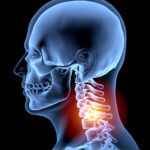 human-spine-human-neck-pain-x-ray